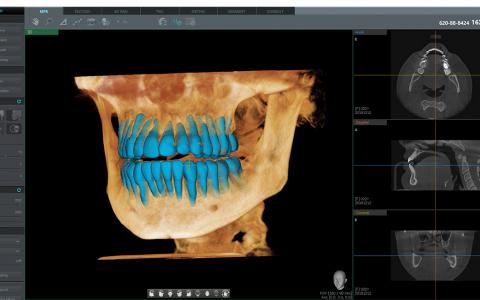 이우소프트, 3D 치아 분리 AI기술 특허-식약처 허가 취득